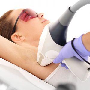 Cosa è l'epilazione laser a diodo?